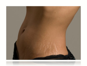 stretch marks cure