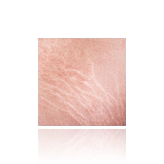 white stretch marks
